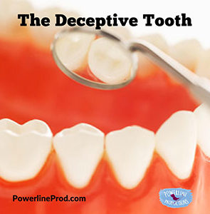 The Deceptive Tooth